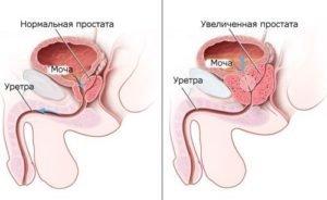 Чистотел от простатита, аденомы и рака простаты: лечение, отзывы мужчин