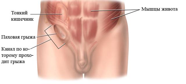 Опухли яички и болят у мужчины: причины, почему отекает мошонка, как лечить