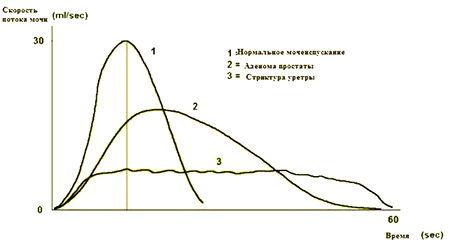 Урофлоуметрия: что это такое, как проводится, подготовка к процедуре, цена