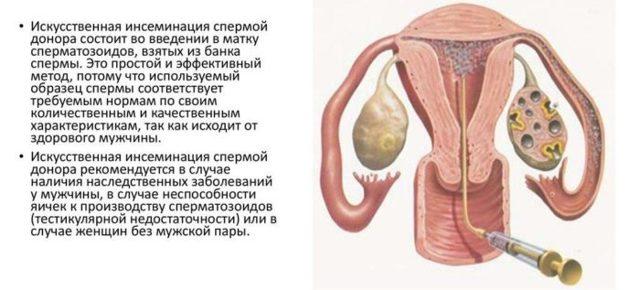 Агрегация сперматозоидов у мужчин в спермограмме: что значит, причины и лечение