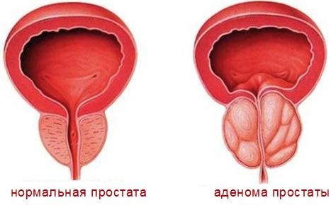 Лечебная физкультура (ЛФК) при простатите и аденоме простаты у мужчин