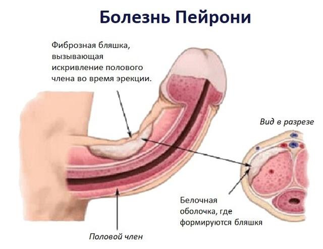 Болезнь Пейрони: причины и лечение, симптомы (фото у мужчин)