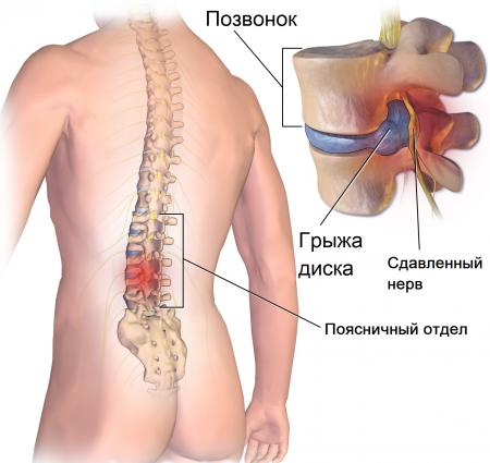 Как остеохондроз влияет на потенцию: что делать мужчине?