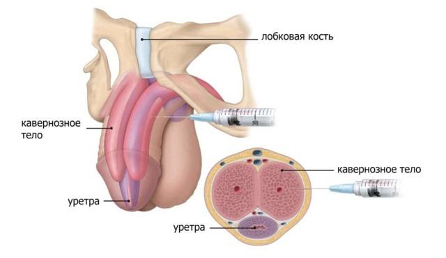 Уколы для эрекции: инъекции для повышения потенции у мужчин