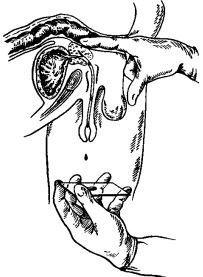 Диагностика простатита у мужчин: как определить, анализы и процедуры