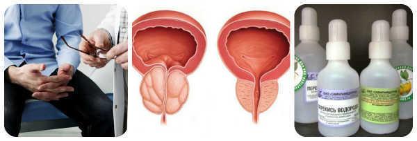 Неумывакин простатит как с помощью сапропелевой грязью лечить хронический простатита