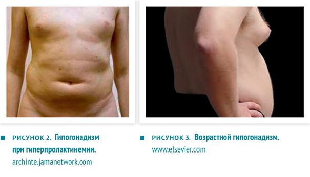 Гипогонадизм у мужчин: симптомы и лечение, причины