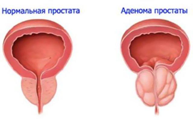 Частое мочеиспускание у мужчин без боли: причины, симптомы, лечение