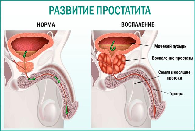 Трихопол при простатите: инструкция по применению, лечение мужчин, отзывы