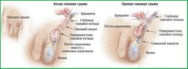 Боль в паху у мужчин справа и слева: причины и лечение