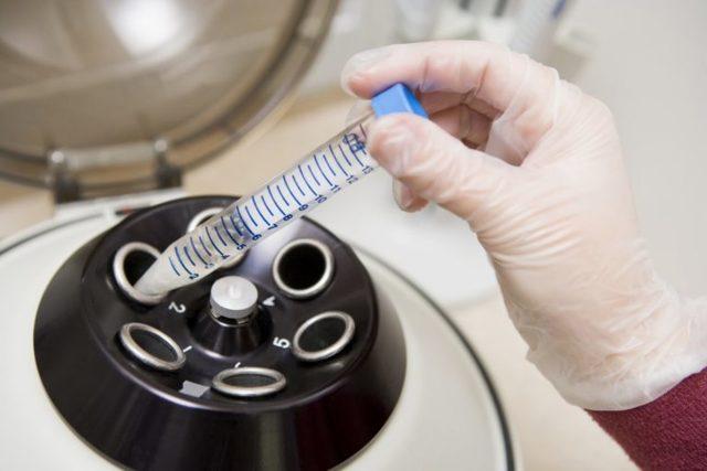Жидкая прозрачная сперма: 12 причин, почему такой стала, что делать мужчине