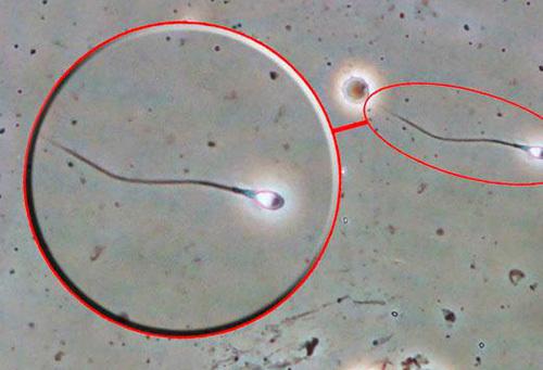 Сколько точно живут сперматозоиды времени (дней и часов) в разной среде?