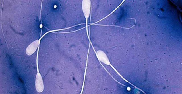 Некроспермия у мужчин: причины, симптомы, лечение