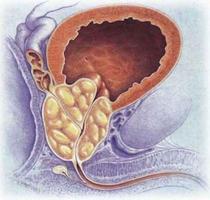 Ломфлокс при простатите: лечение и отзывы мужчин, цена