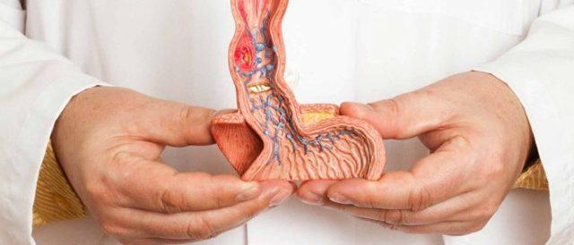 Сосудистая импотенция: лечение (препараты и способы), симптомы