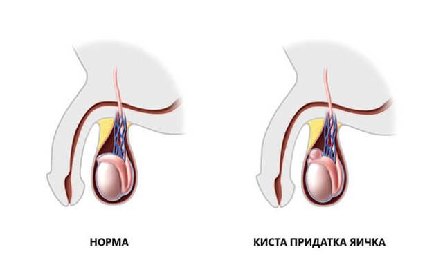 Сперматоцеле у мужчин: причины, симптомы, лечение