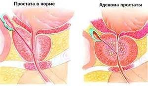 Иван-чай при простатите и аденоме простаты: как заваривать и пить, лечение, отзывы мужчин