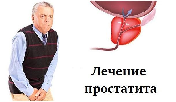Березовый деготь от простатита: лечение (рецепты и применение), отзывы