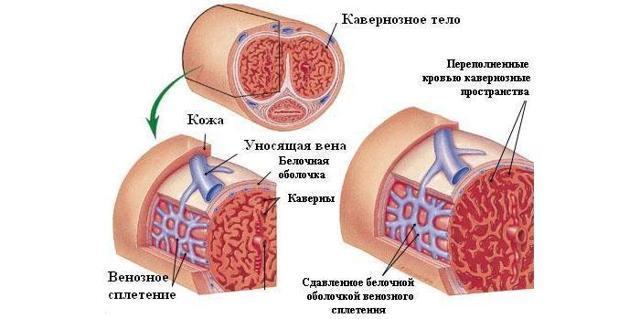 Приапизм у мужчин: лечение, симптомы, причины