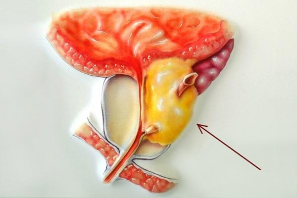 Аденома простаты у мужчин: симптомы и лечение, отзывы